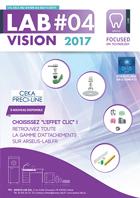 Lab #2 - Vision 2017